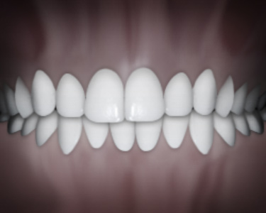 Dental midlines not matching