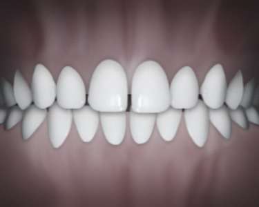 teeth spacing