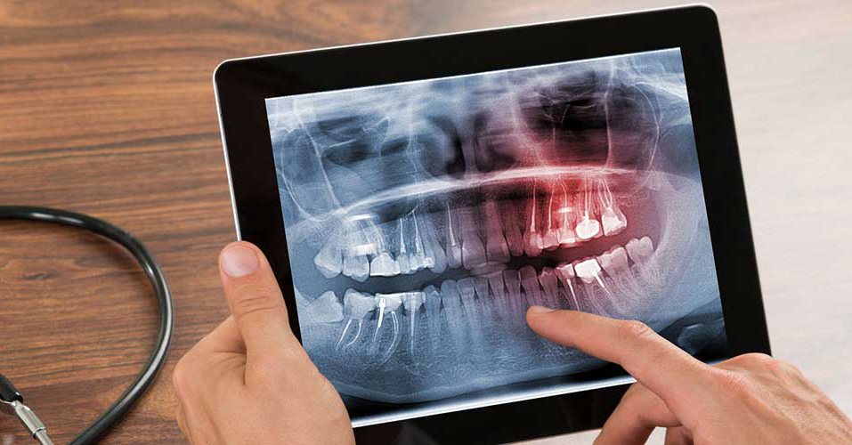 Jaw and teeth x-ray for surgical orthodontics