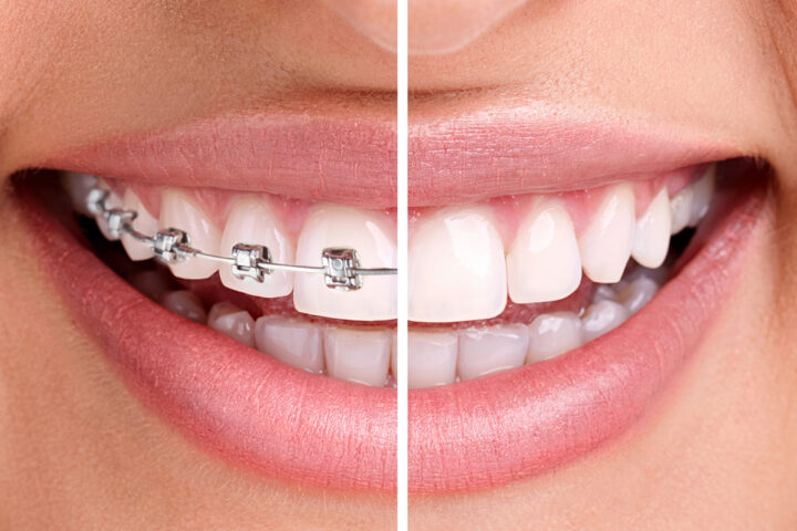 Traditional Metal Braces vs. New Clear Braces