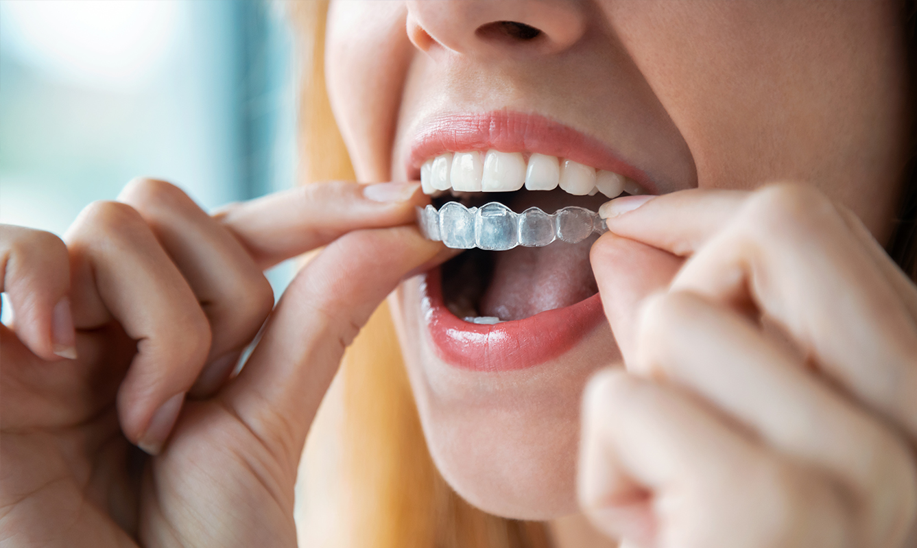 The biggest mistake you can make with Invisalign braces