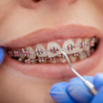 How to Know if Your Kid Needs Braces