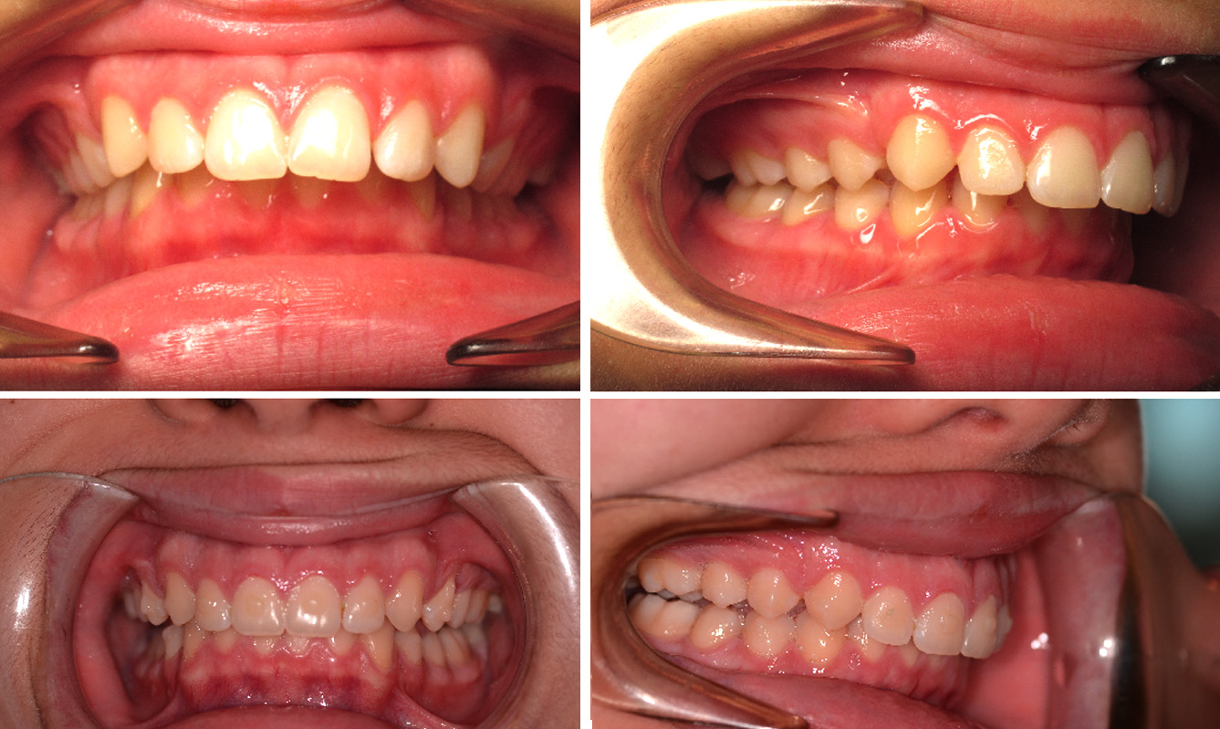 Can you fix an overbite with Invisalign?