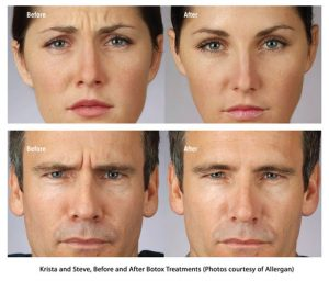 botox dysport louisville dr. crabtree liposuction institute cosmetic surgery