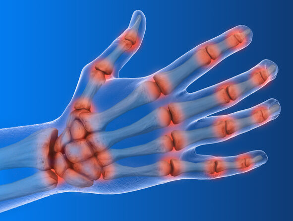 3-D illustration showing inflammation in joints of hand and wrist