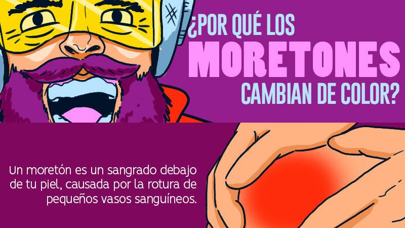 MORETON 1