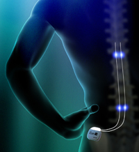 Spina Cord Stimualtion