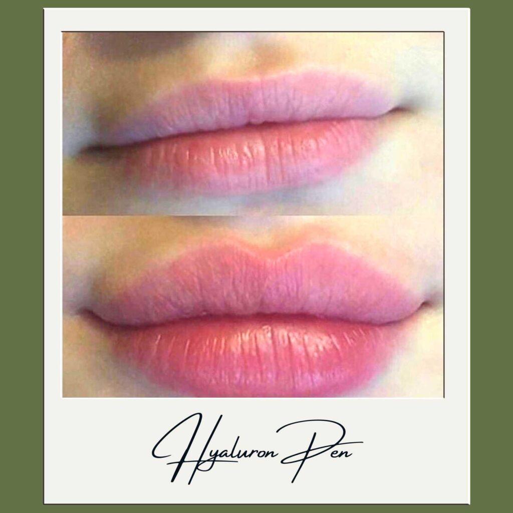 Hyralon Pen - Beauty by Tracey