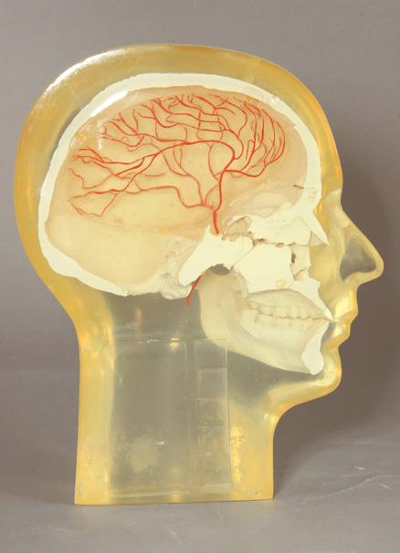 Angiographic Head Phantom