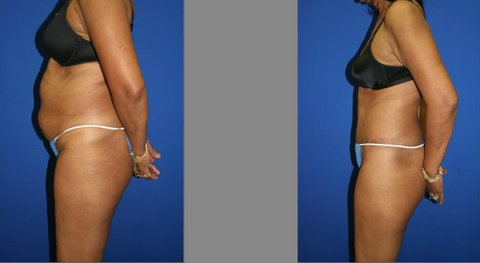 Abdominoplasty and Liposuction of Hips