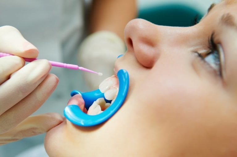 young girl receiving Dental Sealants