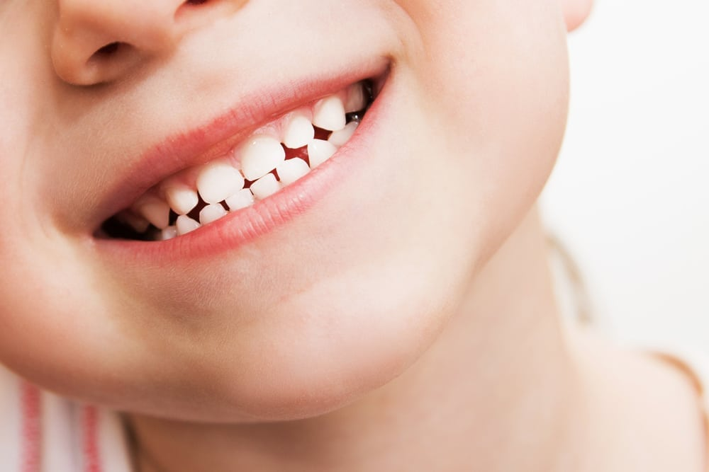 close up of a childs teeth