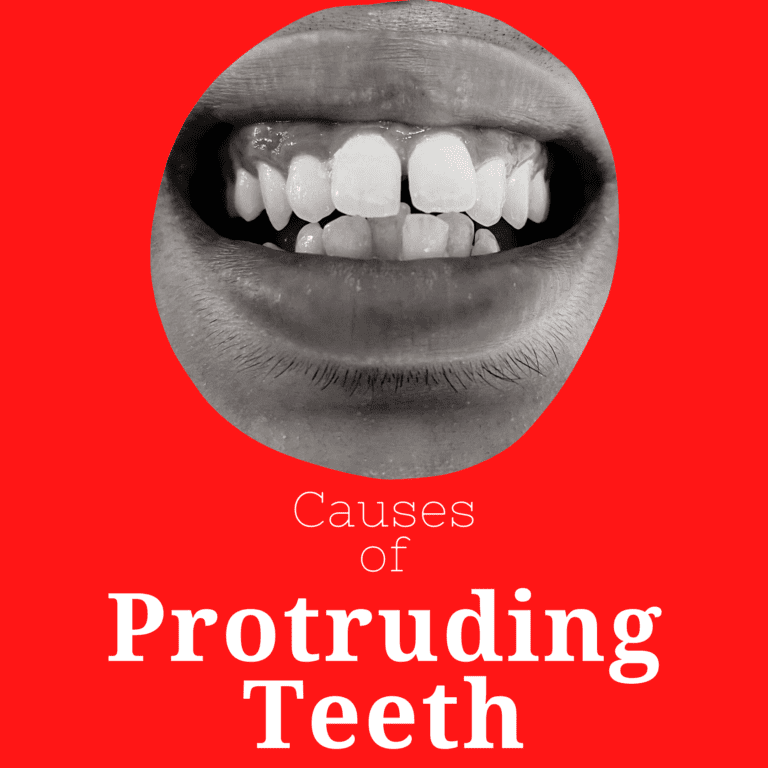 causes of protruding teeth