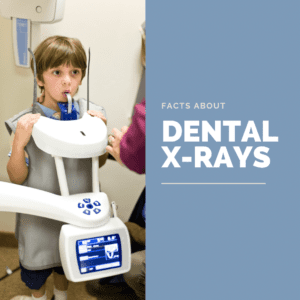 Facts About dental xrays