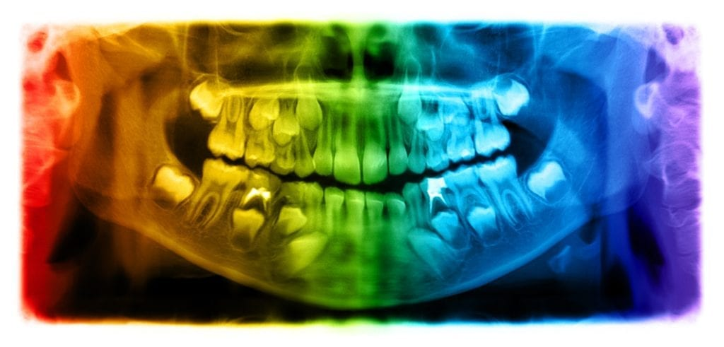 dental x-ray of impacted teeth
