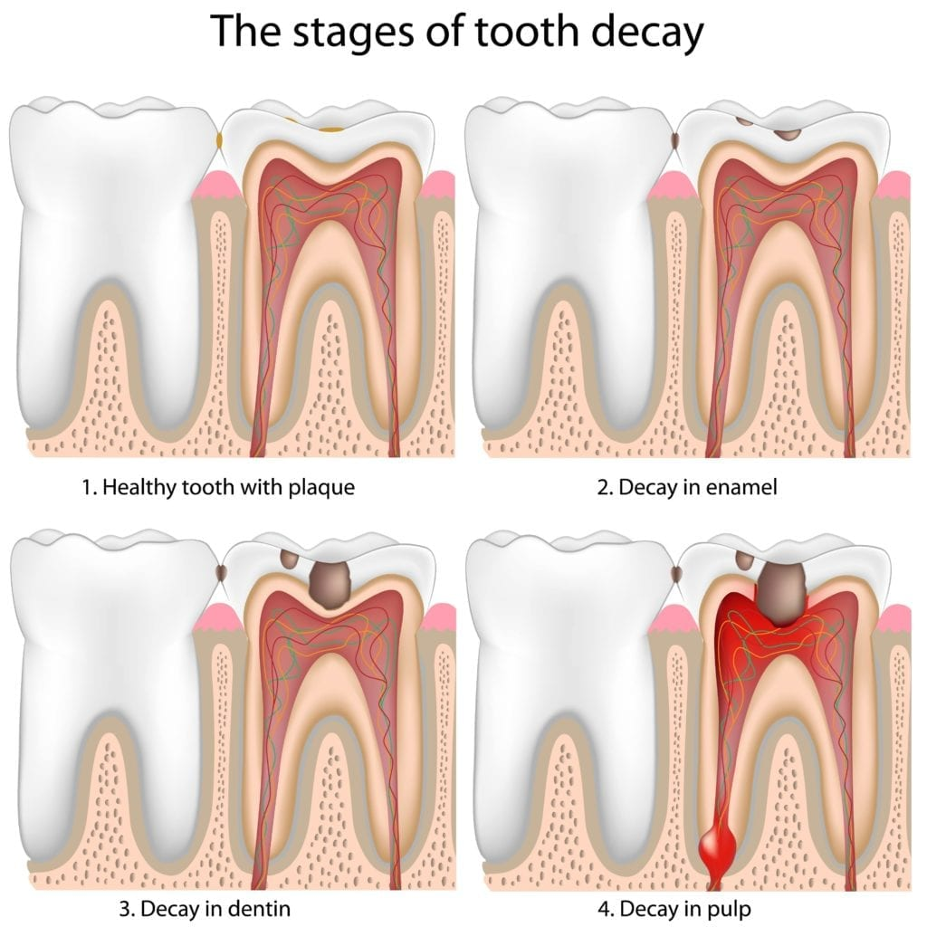 stages of tooth decay