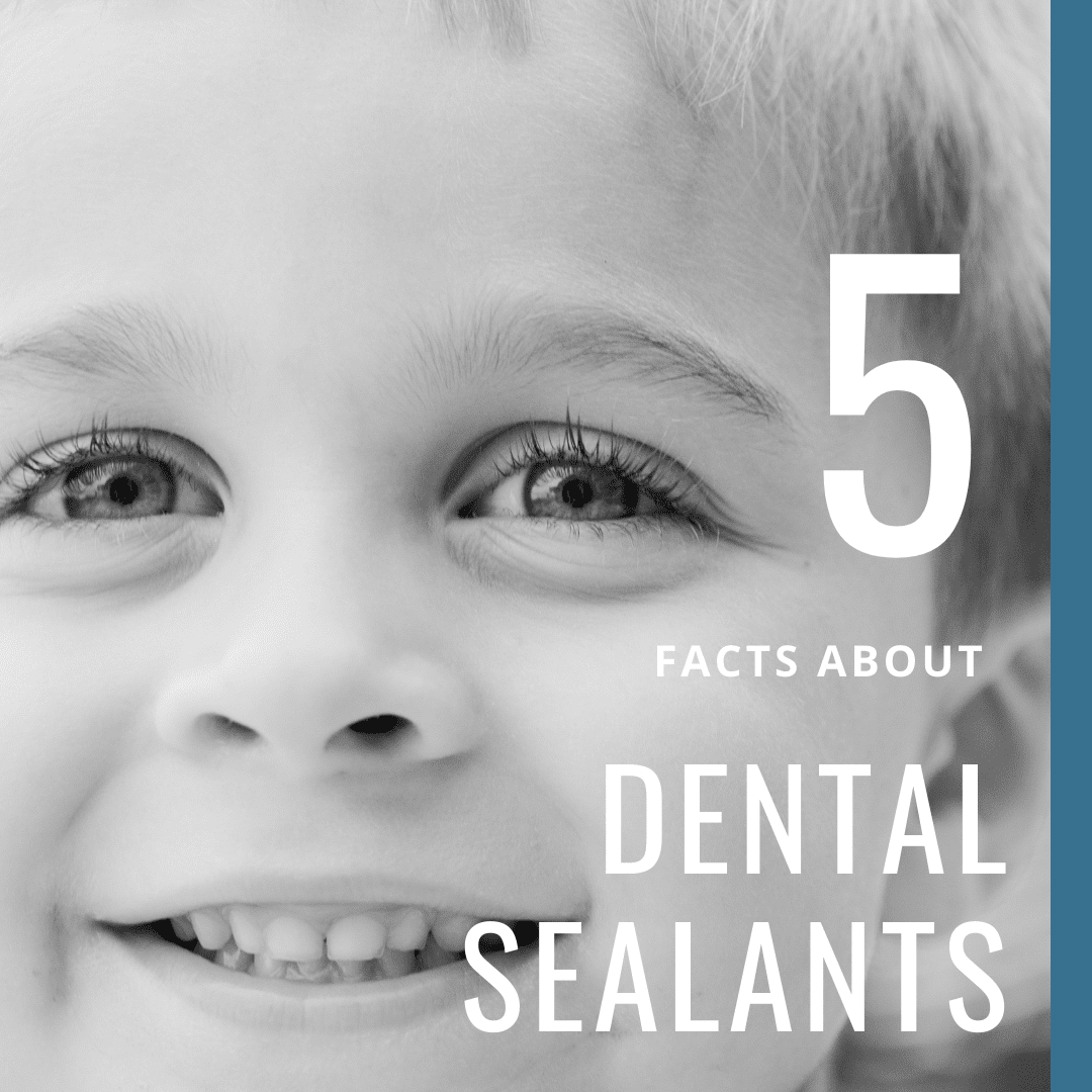 5 Facts About Dental Sealants