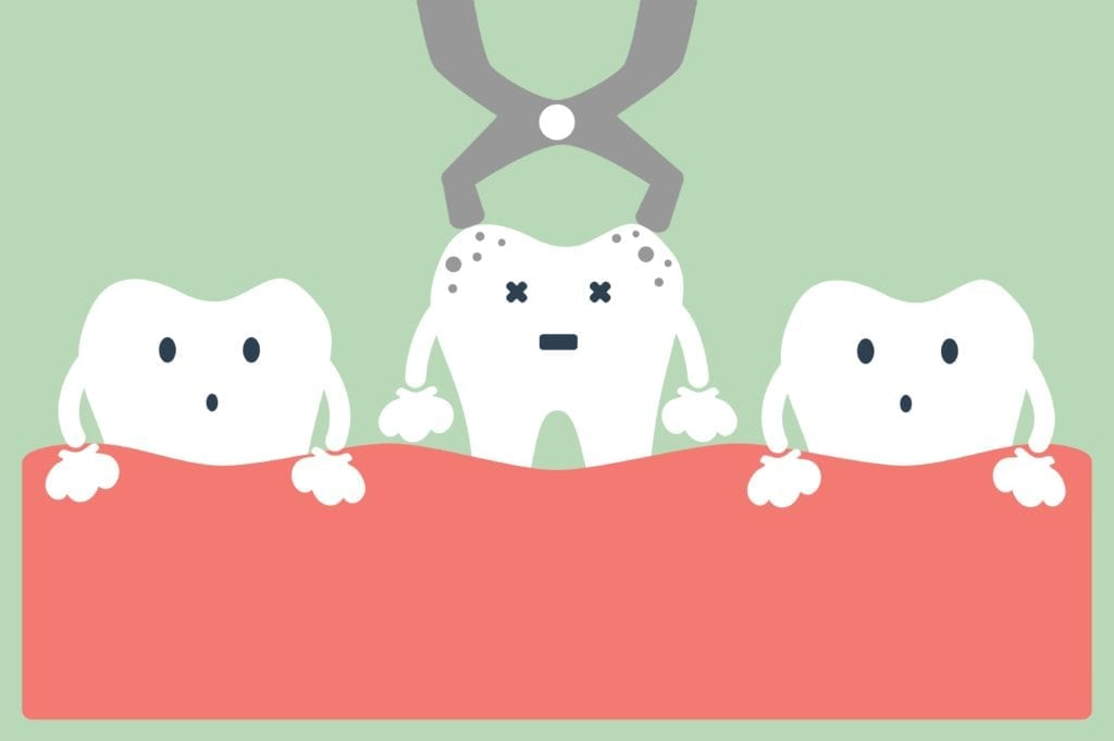 cartoon of tooth extraction