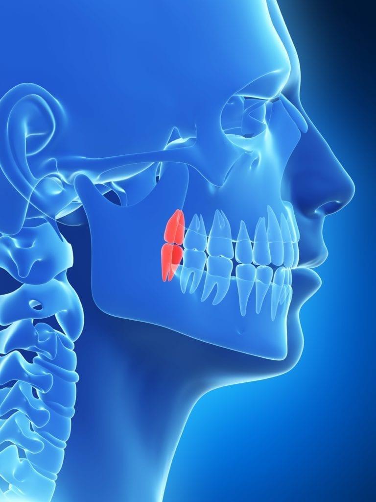 wisdom teeth shown in skull