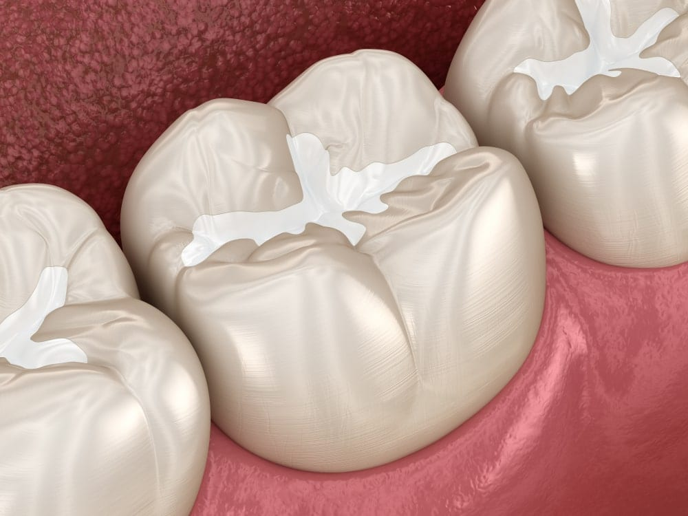 dental sealant shown on chewing surface of molars