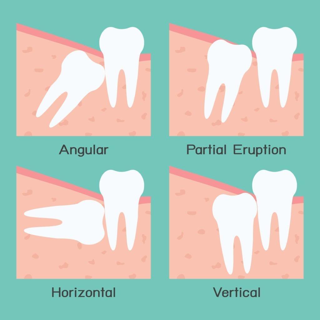 types of wisdom teeth impactions