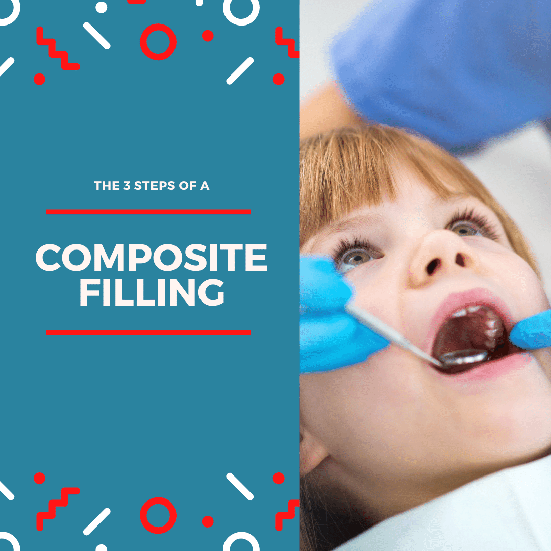 The 3 steps of a composite filling (1)