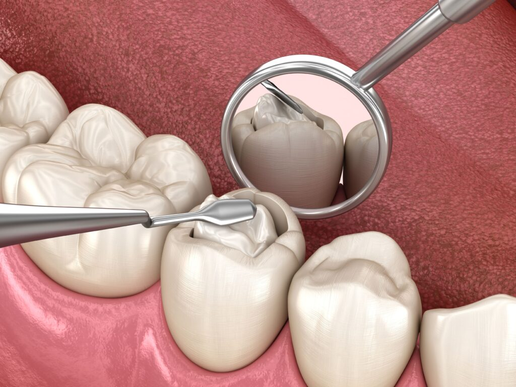 dental composite being placed in a cavity