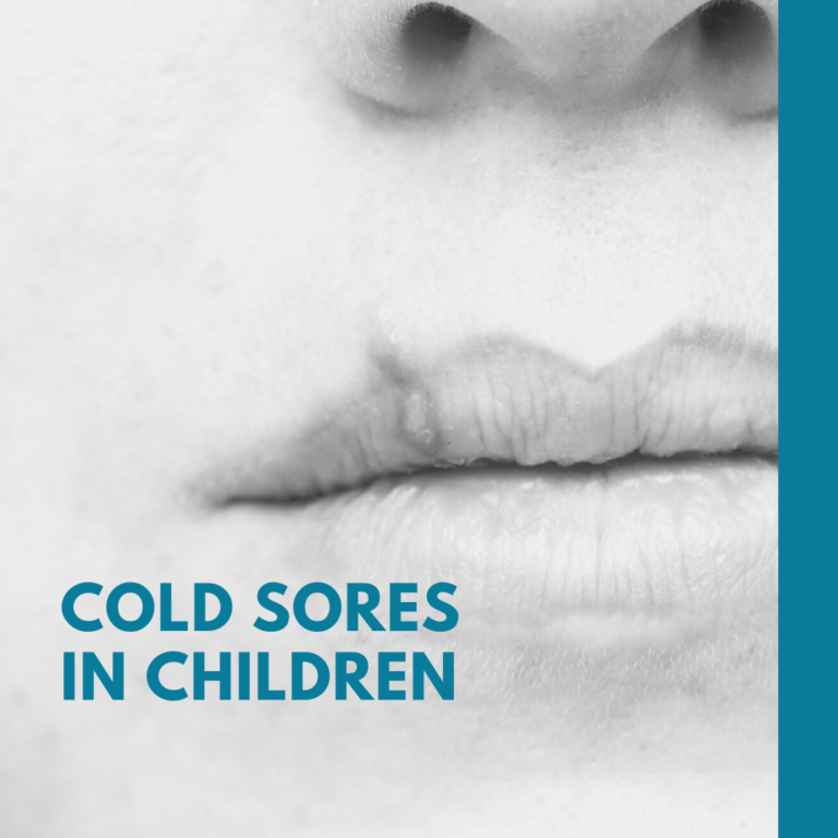 Cold Sores in Children