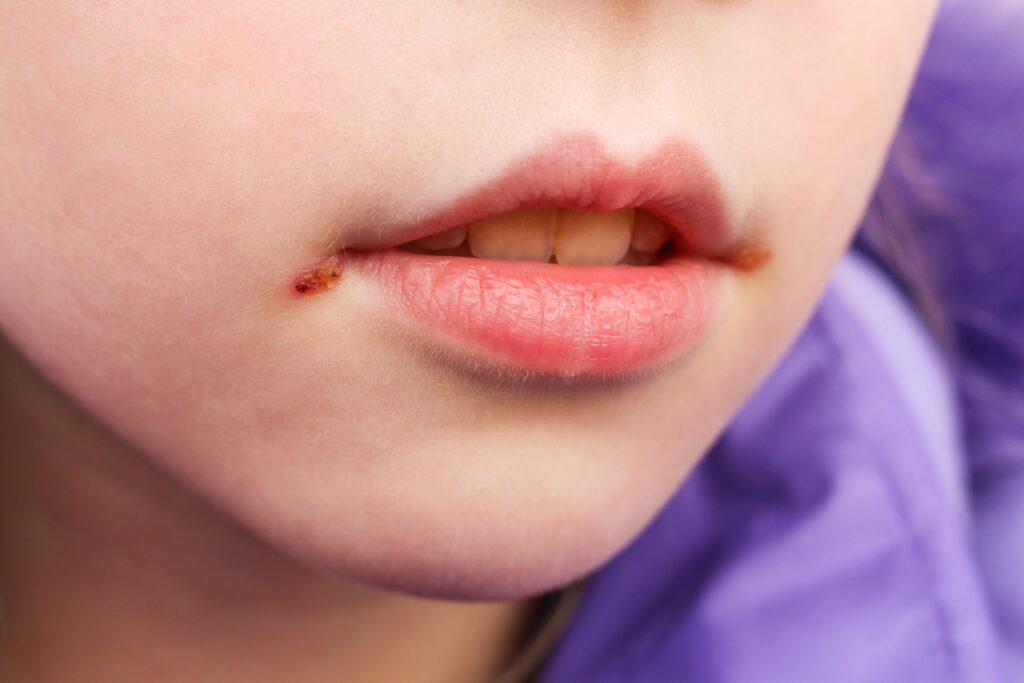child with a cold sore on lips