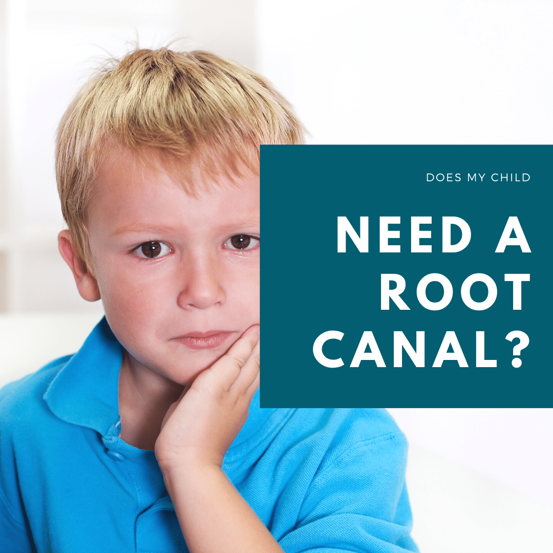 does my child need a root canal