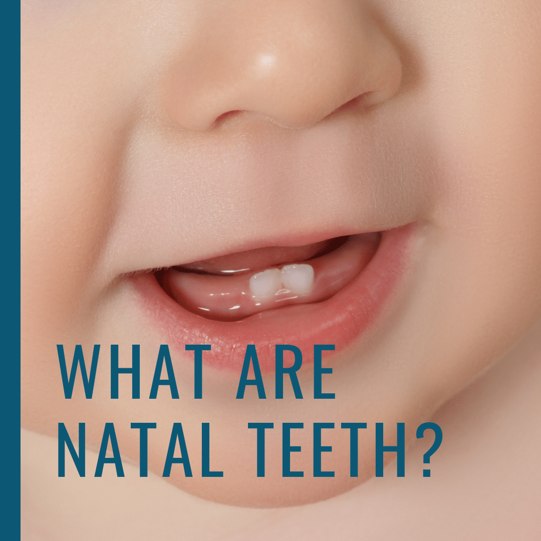 What are Natal Teeth