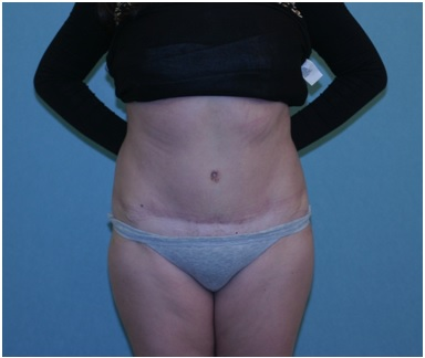 Abdominoplasty (Tummy Tuck) Before & After