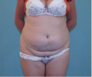 Before Tummy Tuck Surgery