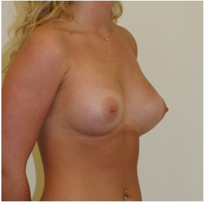 Post Breast Surgery