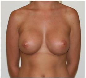 Post Breast Augmentation