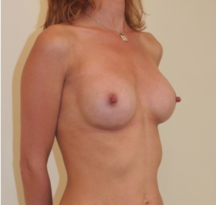 Post Breast Augmentation