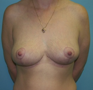 Post Breast Lift Surgery