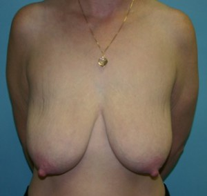 Before Breast Lift Surgery