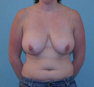 Pre Breast Lift Surgery