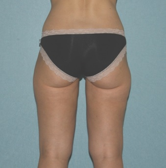 Post Liposuction Melbourne