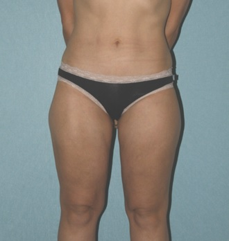 After Liposuction Surgery