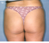 Pre Liposuction Surgery