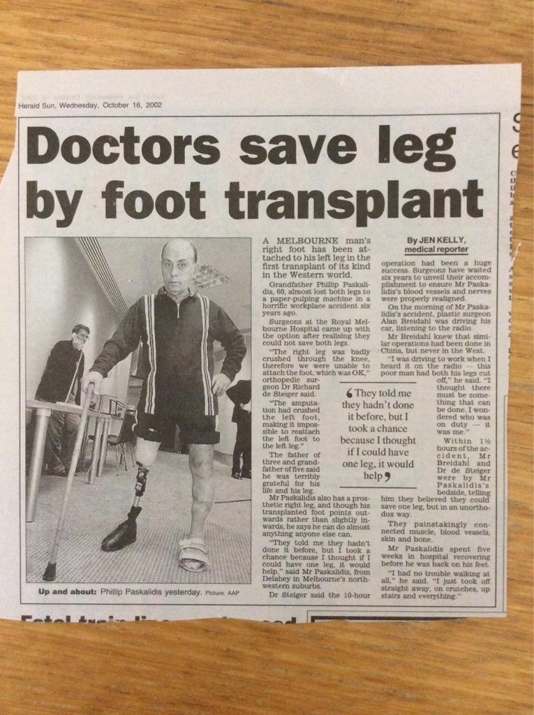 Melbourne Doctors save leg by foot transplant