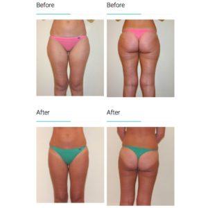 Melbourne Liposuction Surgery