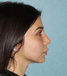 Rhinoplasty (Nose) Before & After