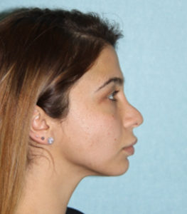 Surgery of the nose