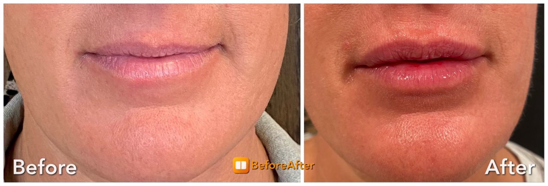 PDO Smooth Threads to Vermillion Border and 1 Syringe Restylane. Before and 2 Weeks After