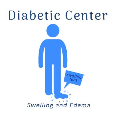 Nobile Shoes, Diabetic Center treats Swelling and Edema