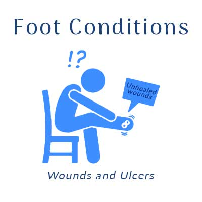 Nobile Shoes treats foot conditions, such as wounds and ulcers