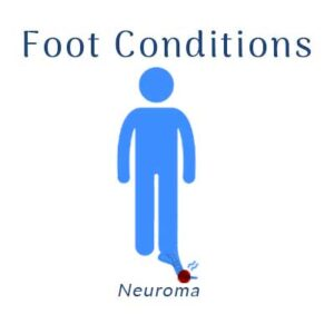 Nobile Shoes treats for Neuroma